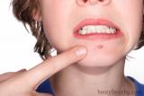 Програма за третиране на акнеична кожа